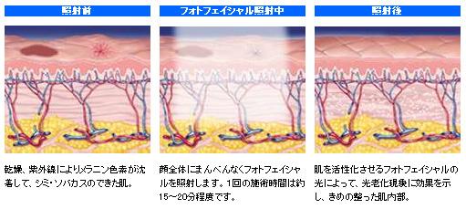 フォトフェイシャル照射の説明画像