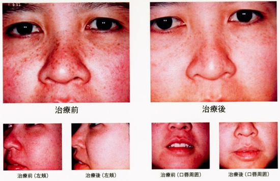 シミ・ソバカスの治療前と治療後の比較画像