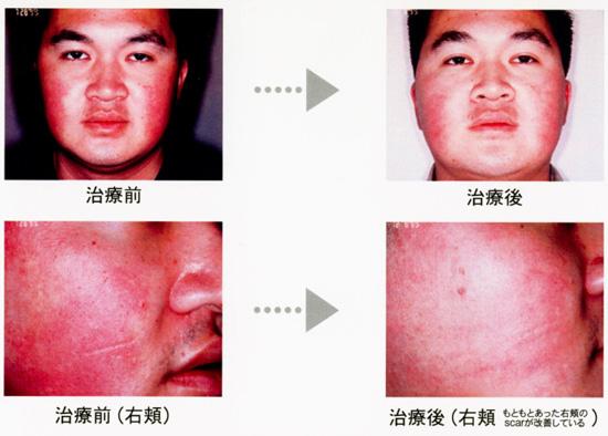 赤ら顔・血管拡張の治療前と治療後の比較画像