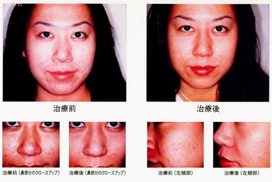 顔全体の肌トラブルの治療前と治療後の比較画像